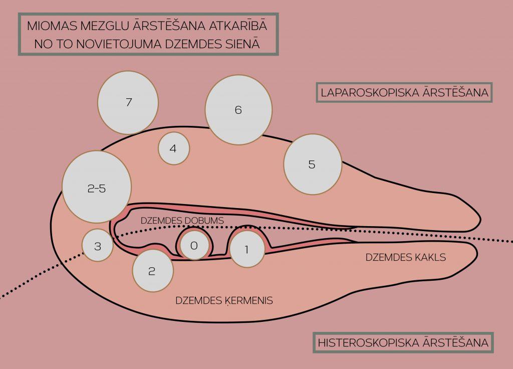 Dzemdes miomas ārstēšanas metodes izvēle atkarībā no tās novietojuma dzemdes sienā
