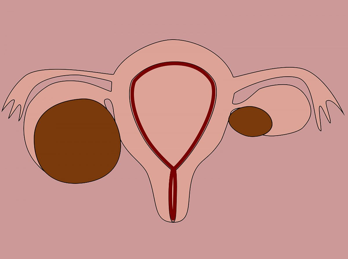 Endometrioze